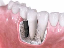 a3 - تجلیل از دندانپزشکان زنجیره مراکز دندانپزشکی (زمرد) به مناسبت روز دندانپزشک