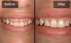 a4 - تجلیل از دندانپزشکان زنجیره مراکز دندانپزشکی (زمرد) به مناسبت روز دندانپزشک