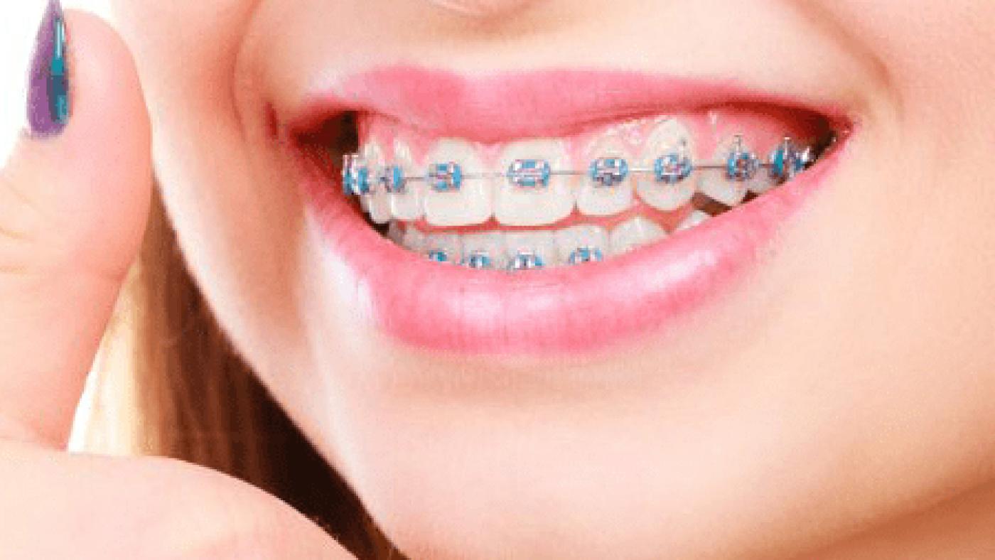 braces-1