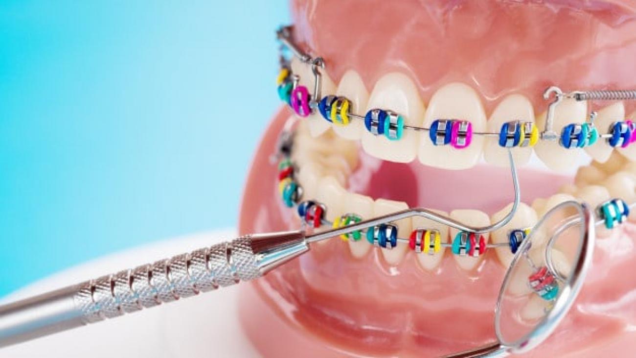close-up-dentist-tools-orthodontic-model-demonstration-teeth-model-varities-orthodontic-bracket-brace_60829-798