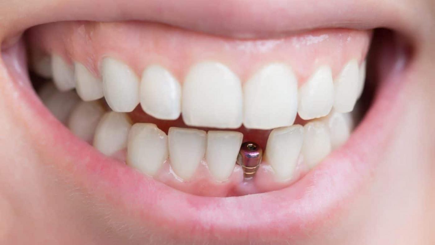 dental-implants-1200x800
