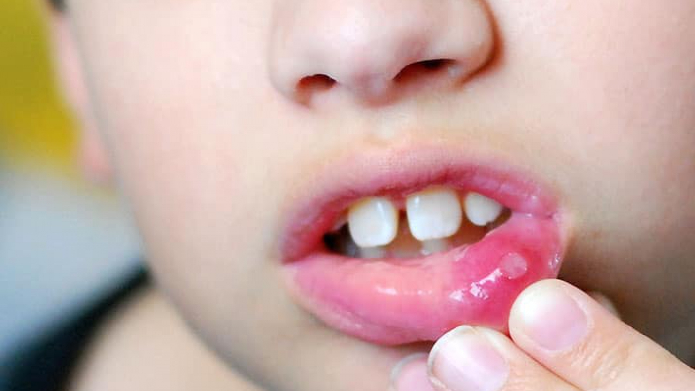 mouth-ulcer