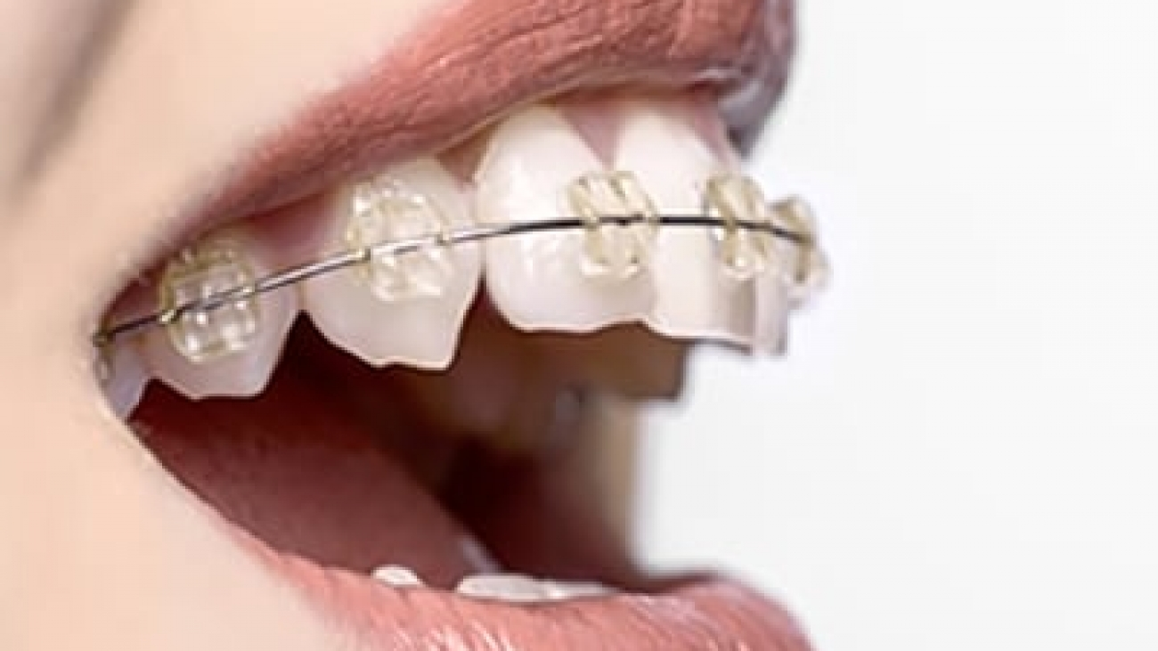 woman mouth, side view, teeth and braces, white background.