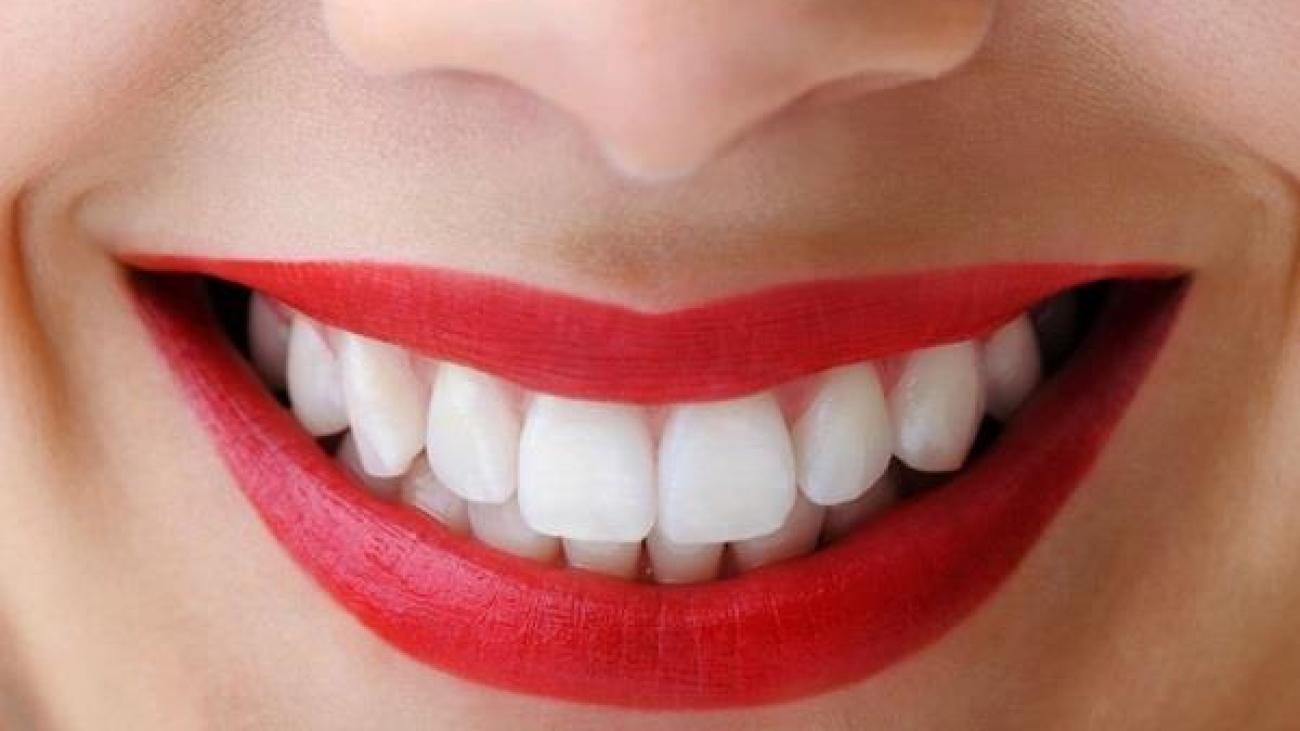 چگونه-دوام-بلیچینگ-بر-روی-دندان-های-خود-را-بیشتر-کنیم